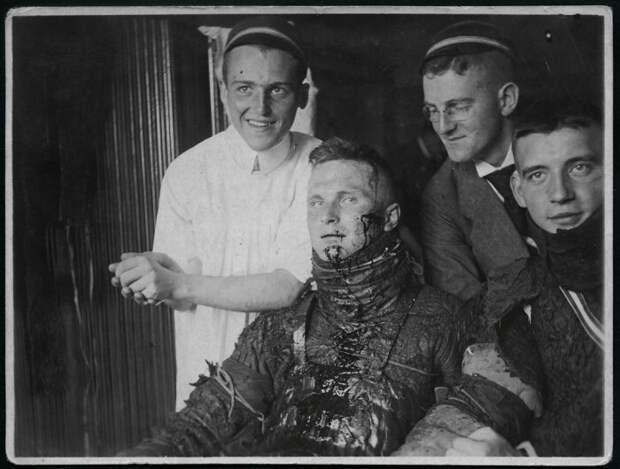 Лицо в шрамах, сразу видно - образованный человек. /Фото: bestlj.ru.
