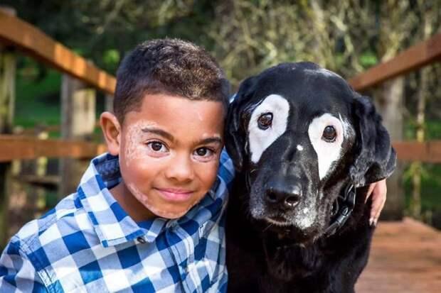 Благодаря своей болезни, они нашли друг друга! Мальчик, который наконец-то полюбил себя…