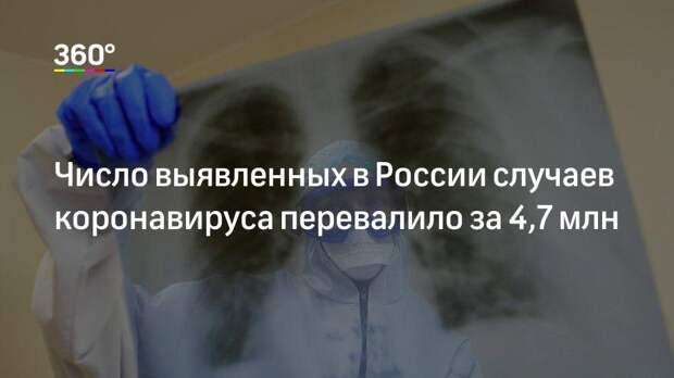 Число выявленных в России случаев коронавируса перевалило за 4,7 млн