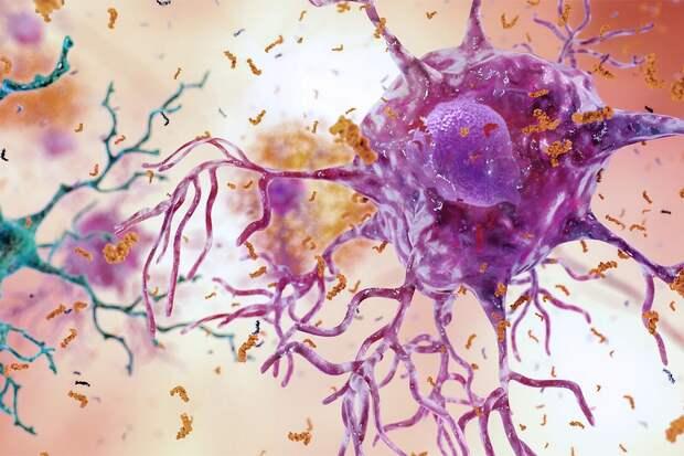 Ученые предложили инновационный способ борьбы с болезнью Альцгеймера