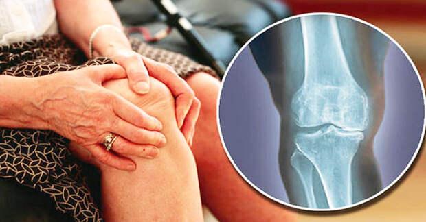 Причины возникновения остеоартрита коленного сустава и способы его устранения