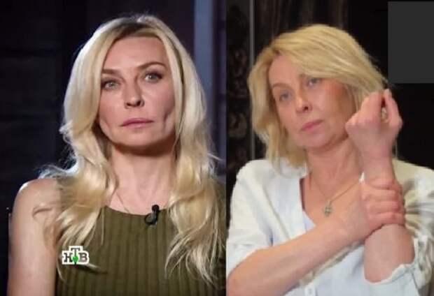 Наталья Штурм объяснила причину одутловатости лица певицы Татьяны Овсиенко