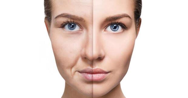 Самые эффективные средства для борьбы с провисанием кожи лица, шеи и декольте (видео)