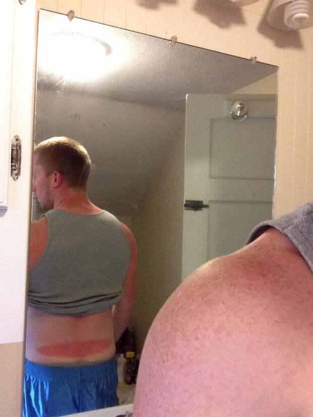 10+ забавных жертв собственного безразличия к беспощадным солнечным лучам
