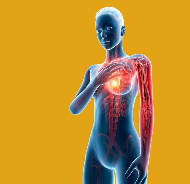 Признаки сердечного приступа, которые женщины часто игнорируют