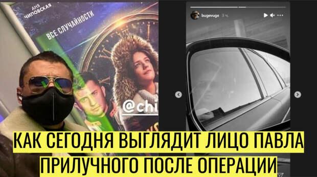 Павел Прилучный показал своё лицо после операции