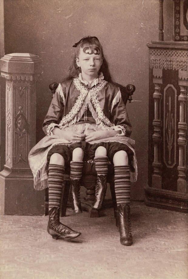 """Не сломалась. Как отданная в """"цирк уродов""""  4-хногая девочка смогла войти висторию утончённой особой"""
