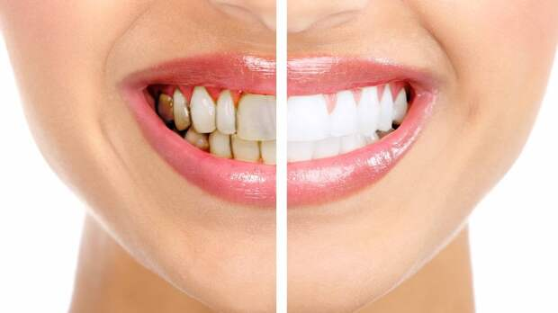 Врач рассказала, можно ли избавиться от зубного налета в домашних условиях
