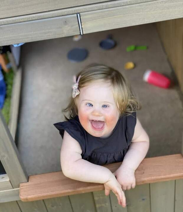 Солнечный лучик: 2-летняя девочка ссиндромом Дауна стала лицом модного бренда