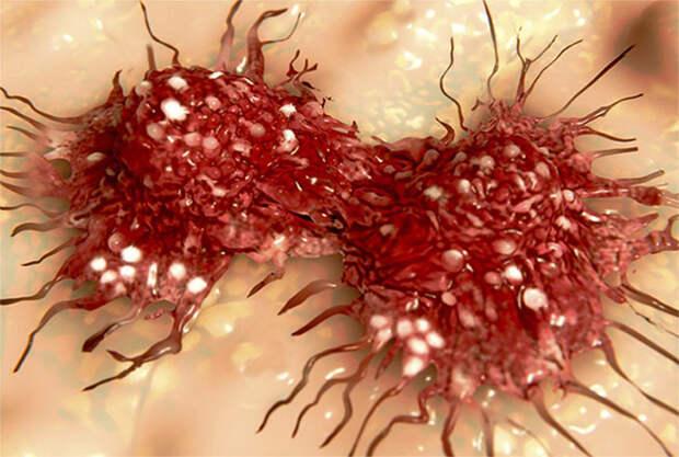 Учёные успешно применили препарат от туберкулёза против раковых клеток
