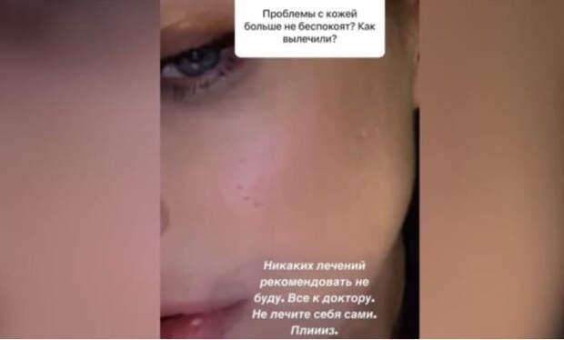 Темникова показала рубцы на лице после тяжелой формы акне