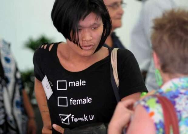Люди среднего пола: кто такие интерсексы икак имживется всовременном обществе