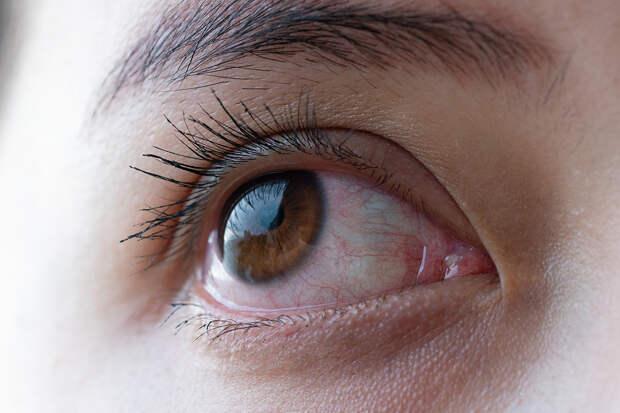Назван способ определить смертельно опасные болезни по глазам