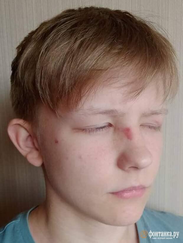 Петербуржец обвинил силовиков в избиении сына-подростка. Полиция советует поискать подозреваемых в зеркале