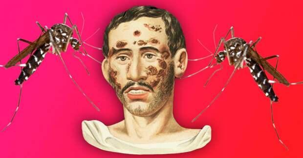 4 удивительных факта о том, как сифилис лечили малярией