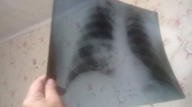 Встационарах Оренбуржья лечат 456 пациентов сCOVID-19