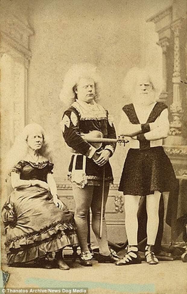 Члены семьи альбиносов Лукази были знаменитыми артистами в XIX веке деформация, люди