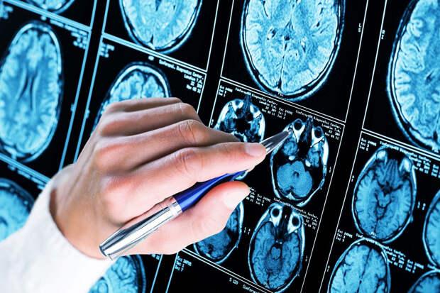 Болезнь Альцгеймера —что это?