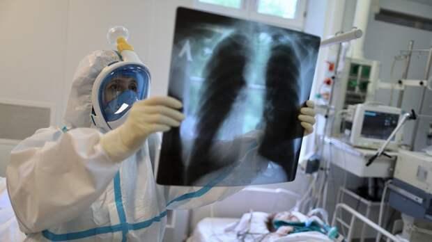 Рубцы в легких обнаружили у бессимптомно переболевших COVID-19 россиян