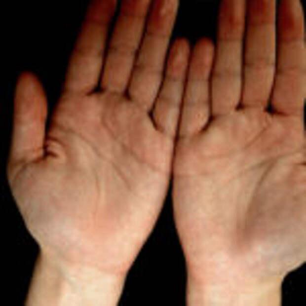 Что такое хиропрактика?