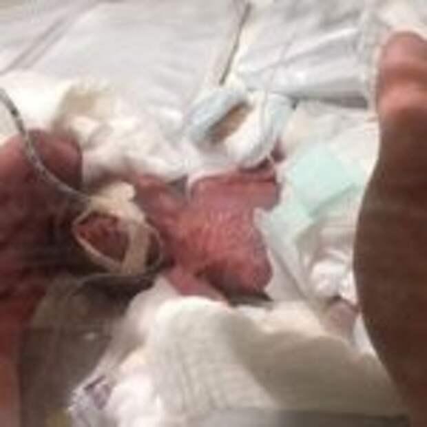 Самый маленький мальчик выписан из родильного дома