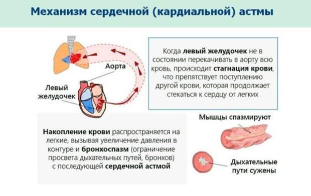 почему появляется сердечная астма