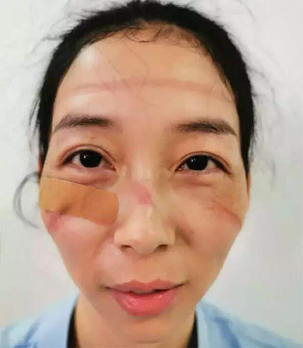 Лица медсестёр из Китая, которые борются с коронавирусом сутками напролёт