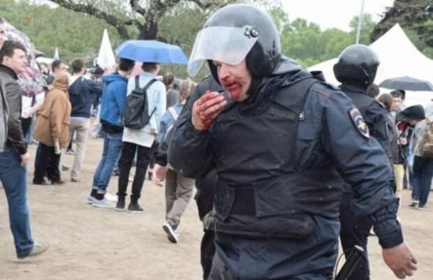 2 процента дерьма – ещё мягко сказано: На незаконном сборище 12 июня бойца Росгвардии пырнули ножом в спину