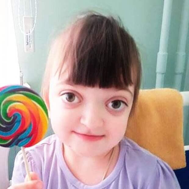 Лиза Гордиенко, 4 года, синдром Крузона, недоразвитие верхней челюсти, множественный кариес, требуется стоматологическое и ортодонтическое лечение, 75891₽