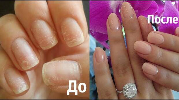 Безламповый гель для ногтей