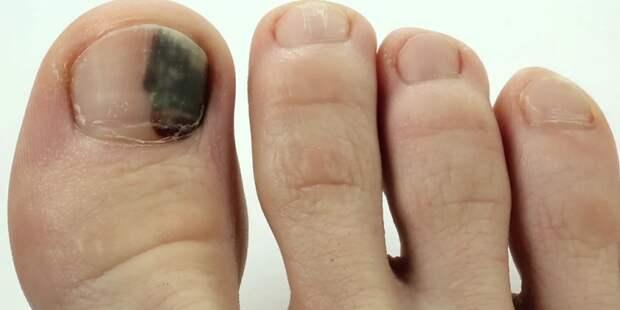 Ноготь на пальце ноги становится черным