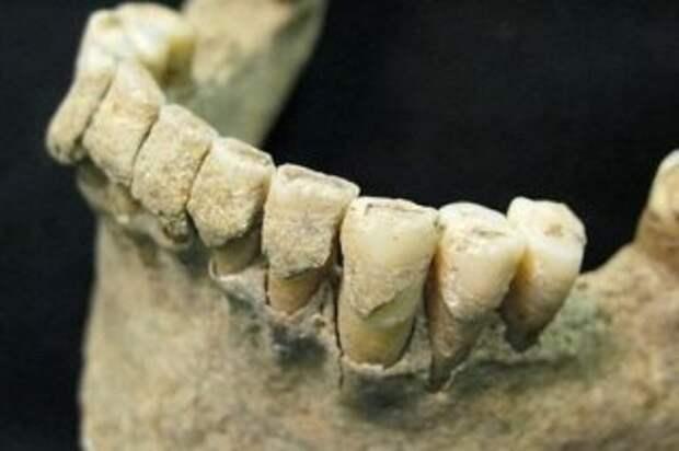 Зуб - единственная часть человека, лишенная способности самовосстанавливаться