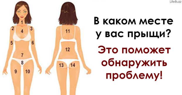 Прыщи на теле могут многое рассказать о вашем здоровье! Запоминайте