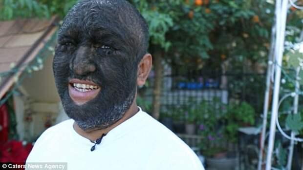 Ларри Гомес - самый волосатый человек на Земле