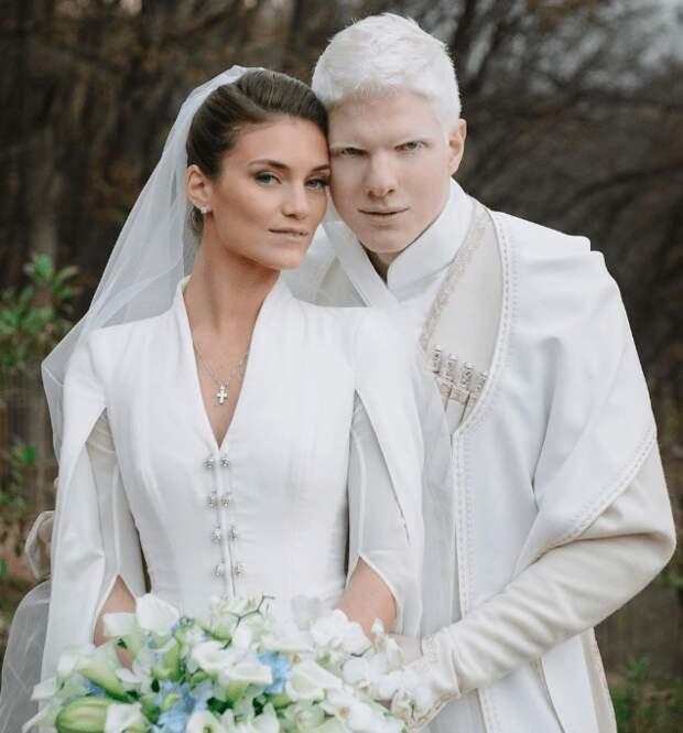 Модель-альбинос Бера Иванишвили и его супруга — пара неземной красоты!
