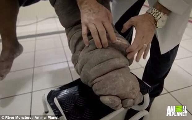 Этот мужчина превращается в слона... Причина этому - простой укус комара!