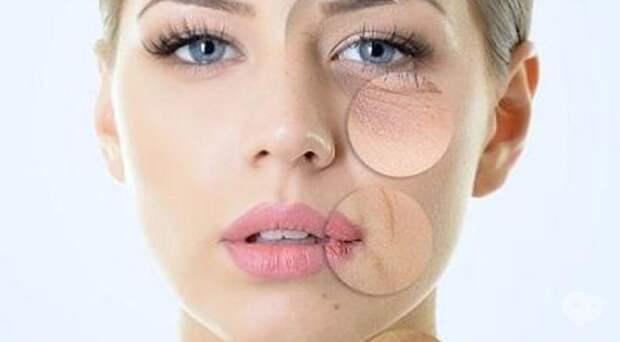 Упражнение омоложения Вашего лица: Всего 1 минута в день и вы неотразимы