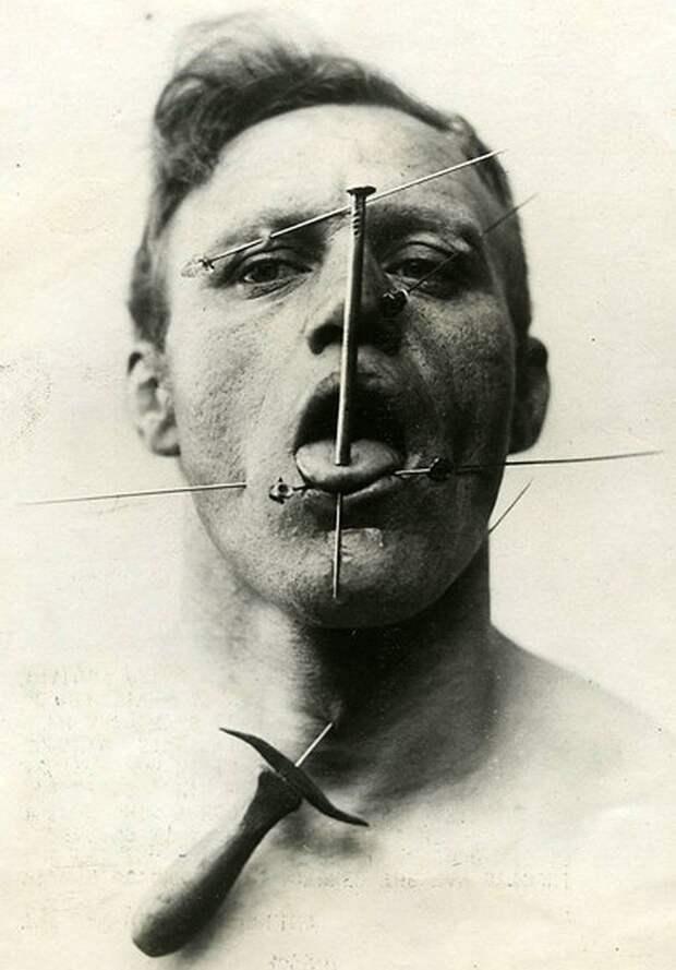 Человек, не чувствующий боли интересное, прошлое, фото, цирк