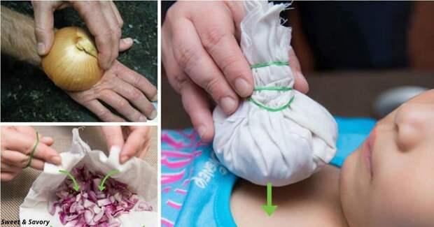 12 абсолютно неожиданных способов использовать лук как лекарство