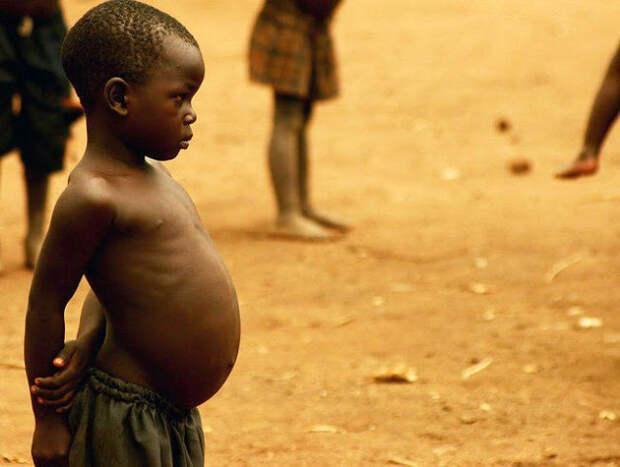 Почему у африканских детей большие животы