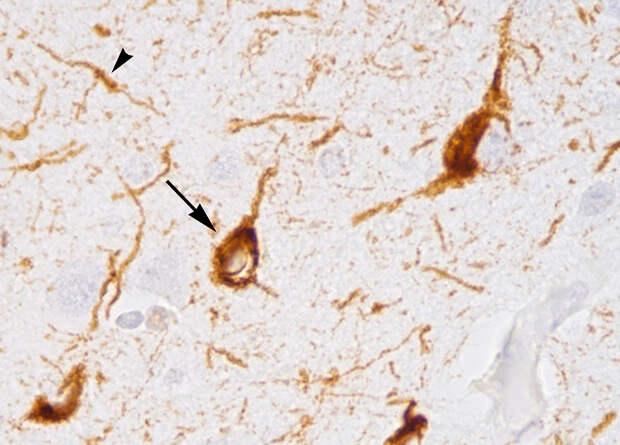 Вакцина против тау-белка для лечения болезни Альцгеймера прошла вторую фазу испытаний