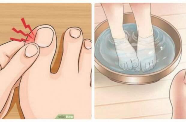 Вот, как можно избавиться от вросших ногтей с помощью этих 5 домашних средств