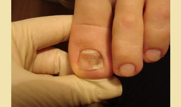 Болезнь ногтей на пальцах ног