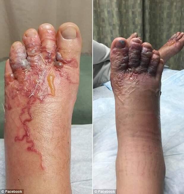 Пара прогулялась босиком по доминиканскому пляжу и не заметила, как в их ноги залезли черви