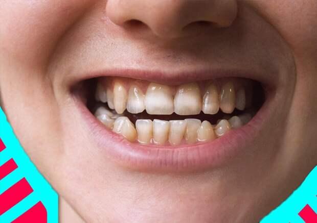 Советы по уходу за зубами: для грудничков и старичков