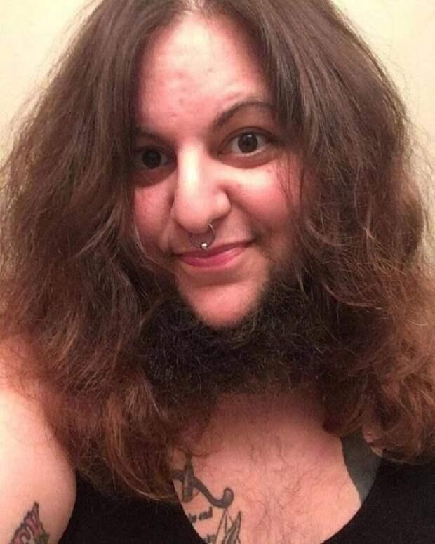 Женщины делятся своими достижениями в области натуральности. Поддерживаете женщин с бородой?