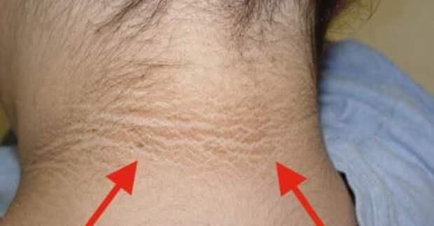 2 эффективных способа устранения потемнения кожи шеи