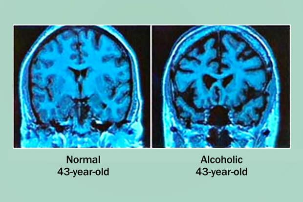 Чем мы рискуем злоупотребляя алкоголем