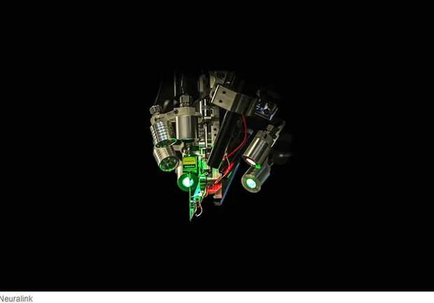 Илон Маск показал имплантат для связи мозга с компьютером. Насколько далеко он зашел?