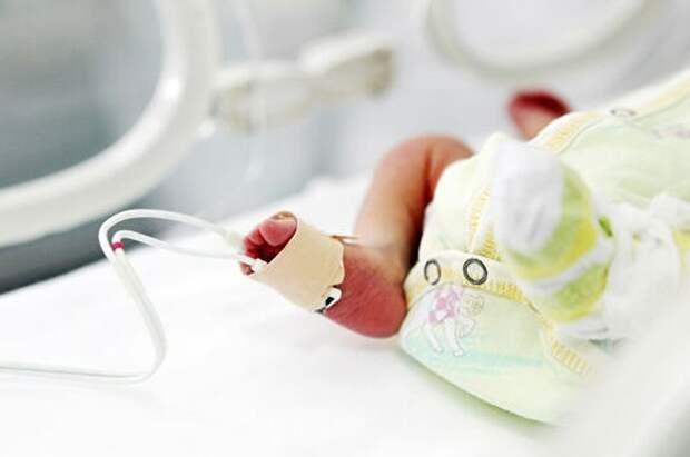 В Баку родилась малышка без рта и с ушами на шее